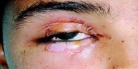 إصابات العيون.. أكثر الأسباب شيوعاً لفقدان بصر الأطفال