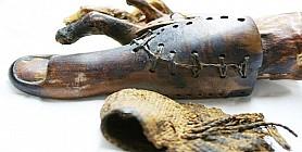 باحثون سويسريون: المصريون القدماء برعوا في ابتكار الأطراف الاصطناعية