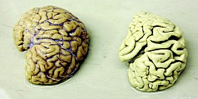تصوير الدماغ يكشف الزهايمر قبل 15 عاماً من حدوثه