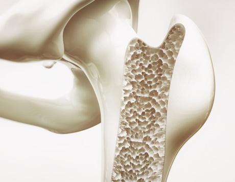 وسيلة جديدة لتعويض العظم